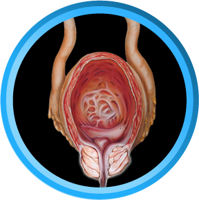Prostatitis - internal diagram of a testicle